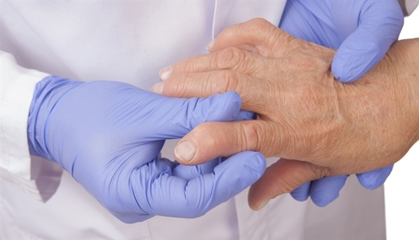 Increased Insulin Resistance in Rheumatoid Arthritis Not Linked to Atherosclerosis
