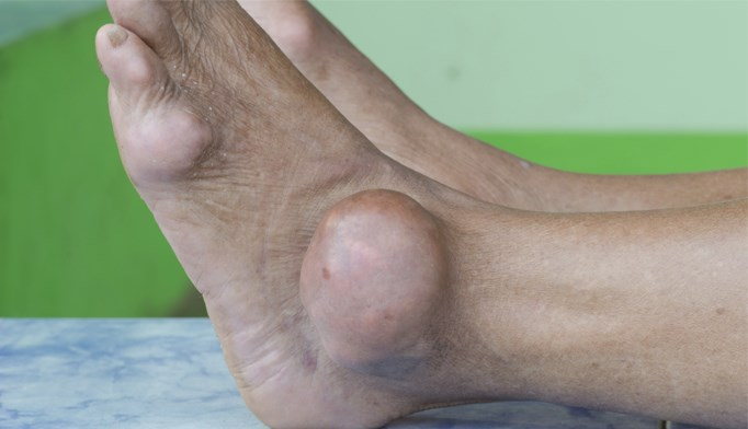 Psoriasis linked to increased gout risk