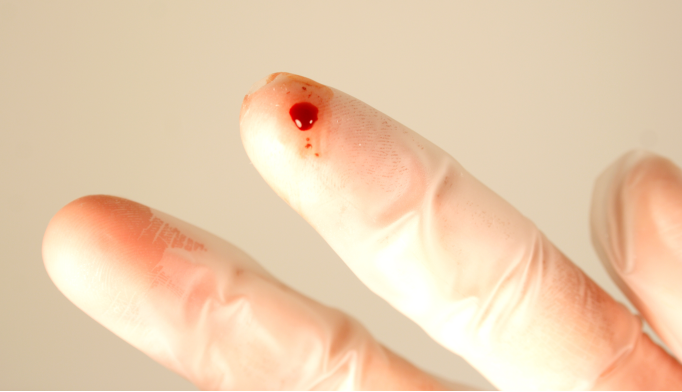 Needlestick accidents at work: What to do next
