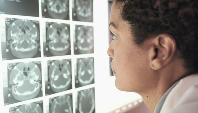 CT assesses plaque in diabetes