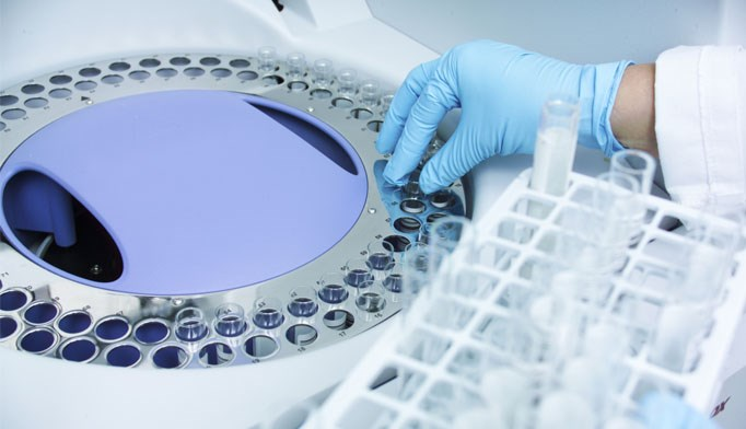 New testing technology closes gaps in HIV prevention
