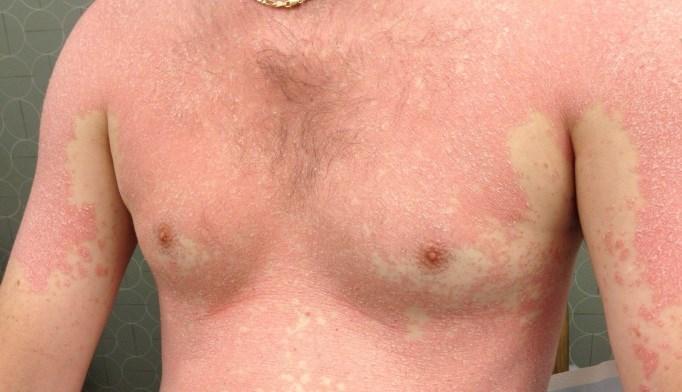 July 2014 Dermatology Clinic CME/CE