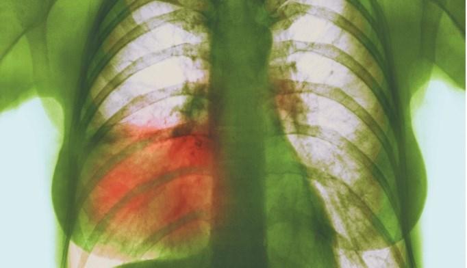 Azithromycin pros beat cons in pneumonia