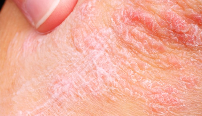 Psoriasis may be triggered by nerve cells responsible for feeling pain