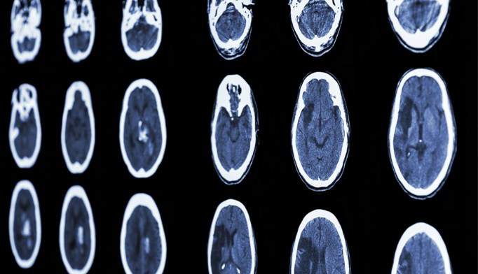 No difference in stroke risk for HIV-positive patients
