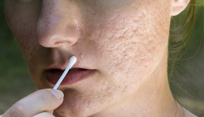 Birth control pill as effective as antibiotics for acne management