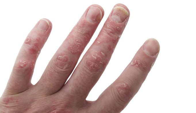 Antidrug antibodies impact adalimumab treatment outcomes in psoriatic arthritis