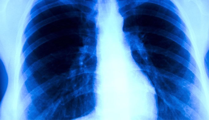 Lung cancer screening cost-effective for Medicare beneficiaries