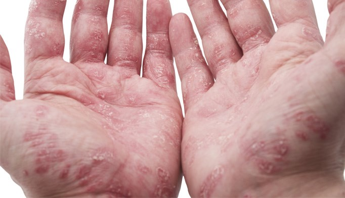 Phase 1 trial results favorable for experimental psoriasis drug