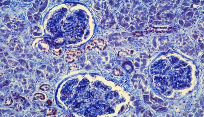 Glomerulonephritis (shown), a cause of AKI, may occur after a bacterial infection.