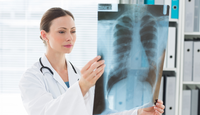 Medicare coverage of lung cancer screenings