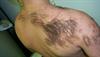 Derm Dx: Coarse hairs on the back, shoulder