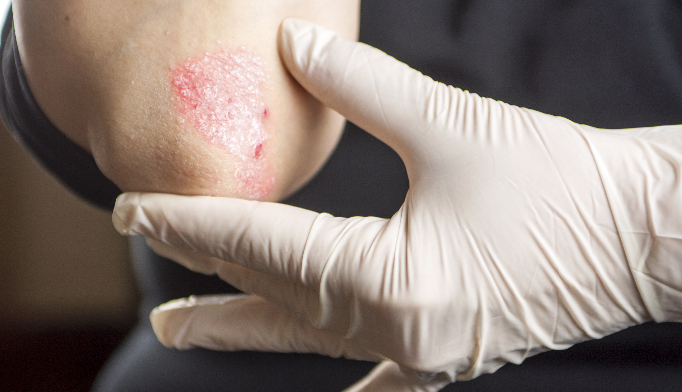 A recurring, itchy, burning rash in a patient taking beta-blockers