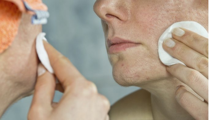 Teenage acne, melanoma link identified