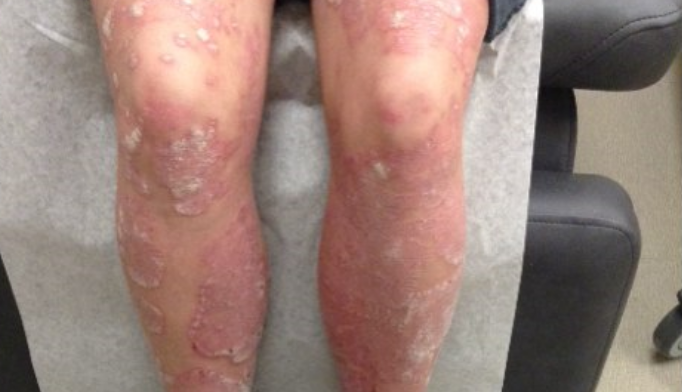Adalimumab treated psoriasis more quickly than methotrexate.