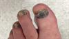 Derm Dx: Hyperpigmentation on fingers, fingernails, and lips