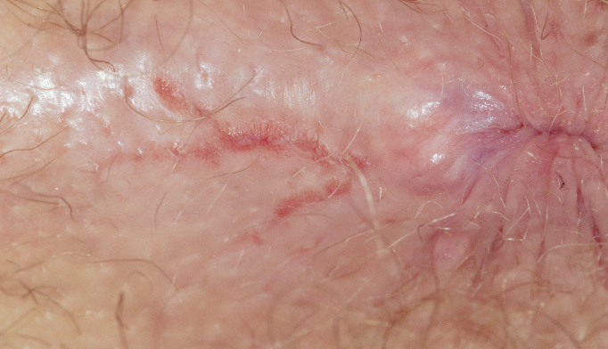 Close-up of a fissure (skin tear) at the anus in a 27 year old male patient.
