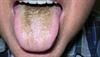 Derm Dx: Black, velvety coating of the tongue