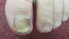 Derm Dx: Discolored toenail