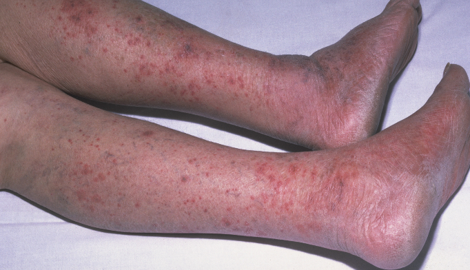 Petechial rash in the legs, resulting from meningococcal meningitis.