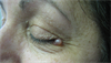 Derm Dx: Cystic papule near the eye