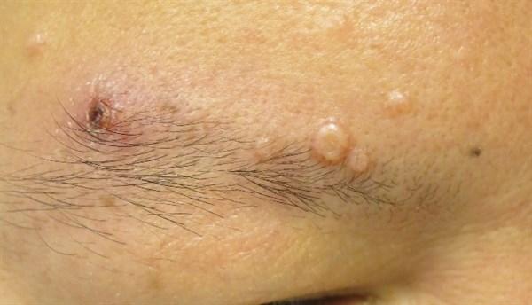 May 2015 Dermatology CME/CE