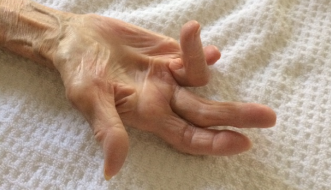 Dupuytren disease: A hands-on condition
