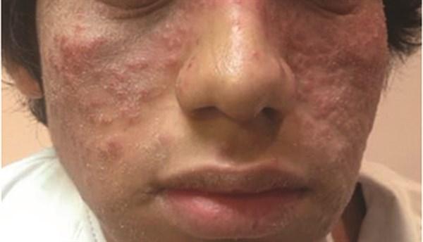 July 2015 Dermatology CME/CE
