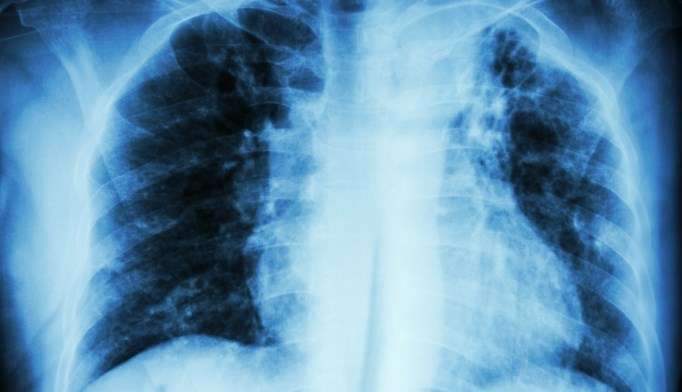 Idiopathic pulmonary fibrosis treatment guidelines updated