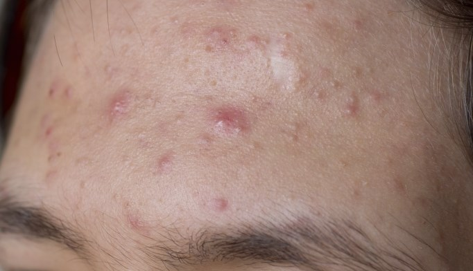 The combination treatment was effective for severe acne vulgaris.