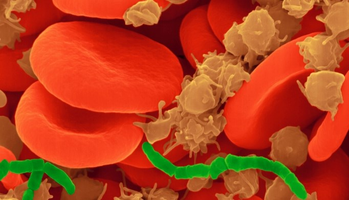 Short chains of bacilli among red blood cells and platelets.