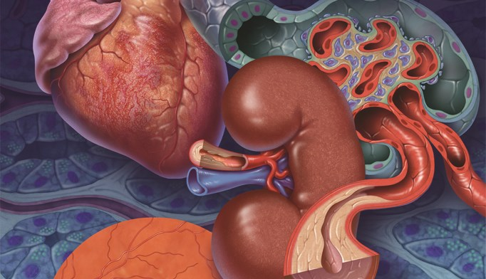 Glycemic control in type 2 diabetes—how low should you go?