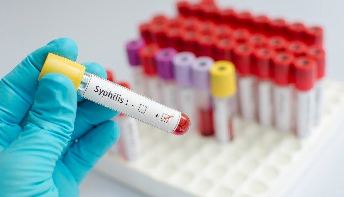 The largest increase in reported STD cases occurred in P&S syphilis, gonorrhea and chlamydia.