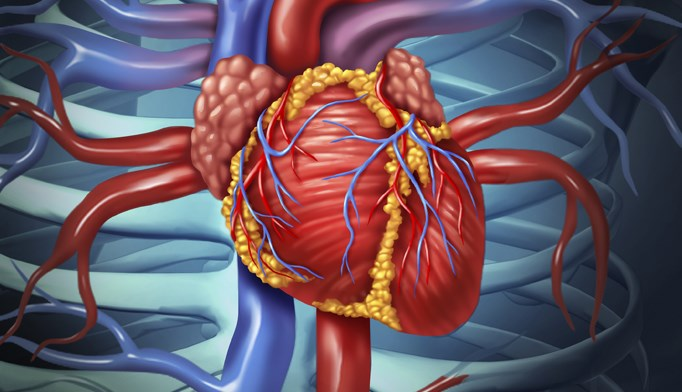 Vagal nerve stimulation does not reduce mortality in heart failure patients