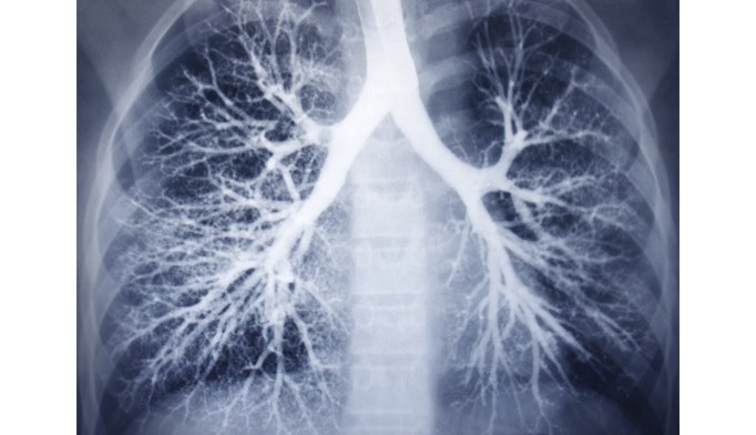 mTOR inhibition improves corticosteroid sensitivity in COPD patients