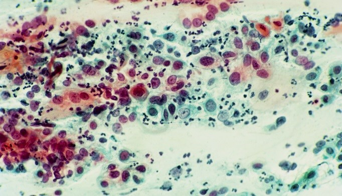 Severe dysplasia of the cervix. Cervical smear, showing clusters of abnormal cells (stained orange).