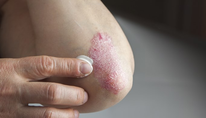 Dermatologic drug prices – including treatments for psoriasis – have risen, on average, 401% between 2009 and 2015.