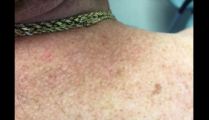 This patient presented for the evaluation of enlarging brown spots.
