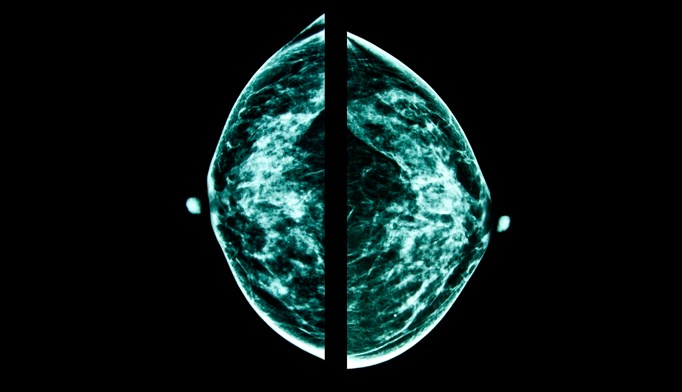 False-positive mammograms and breast cancer risk