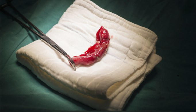Carcinoid appendix
