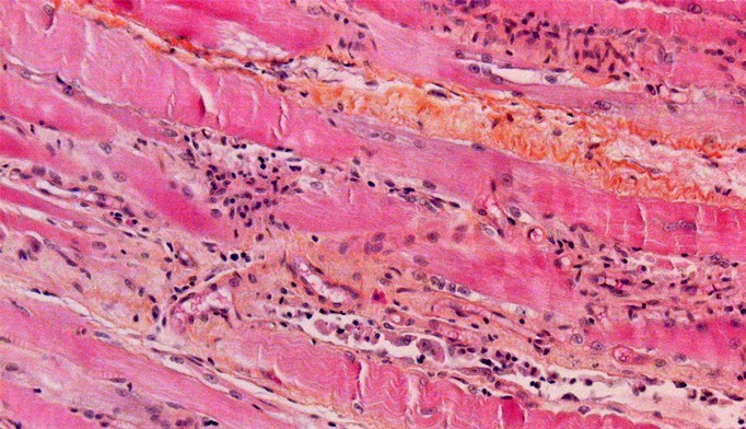 Histological section of striated muscle taken from the quadriceps.