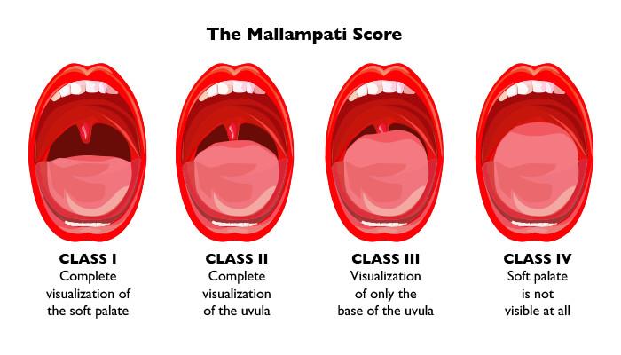 Resultado de imagen de mallampati