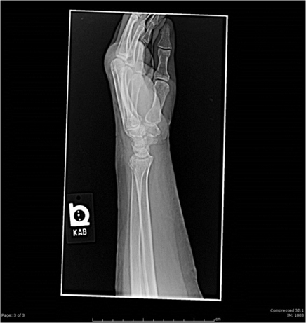Wrist pain after a fall: a simple fracture? - The Clinical Advisor