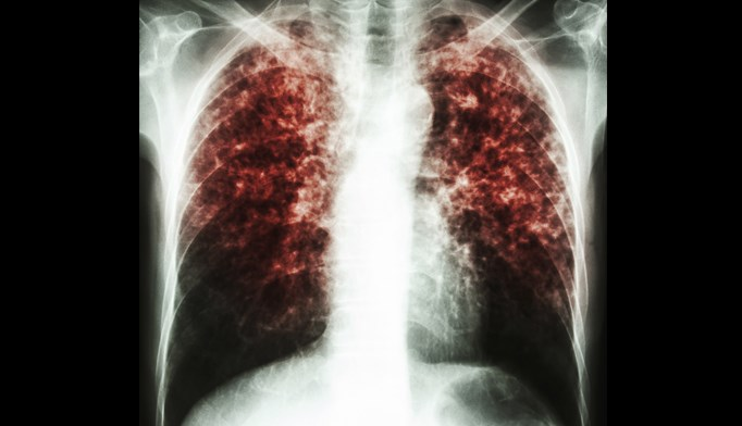 There is a moderate net benefit in screening at-risk adults for latent tuberculosis infection (LTBI).