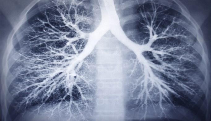 Beta-blockers may reduce COPD exacerbation risk