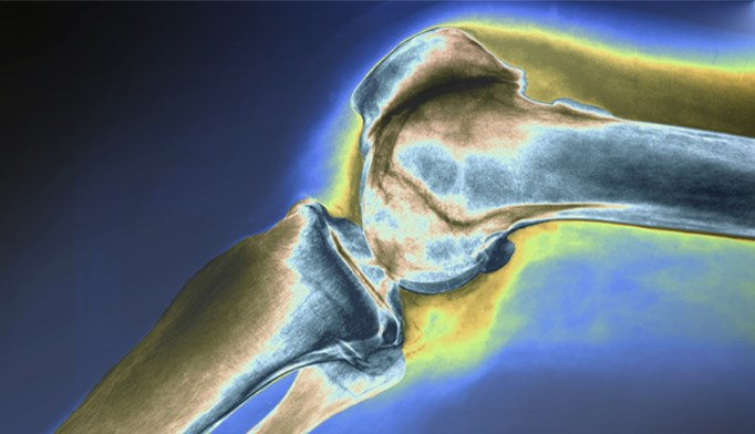 X-ray of the knee, side view, showing severe osteoarthritis.