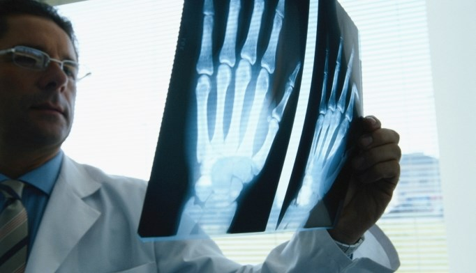 In rheumatoid arthritis, radiologic measures underrate ulnar deviation