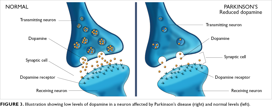 Pesticides and Parkinson's disease - The Clinical Advisor