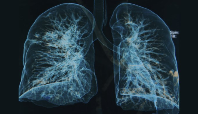 Patients with COPD face treatment challenges, limited access to care