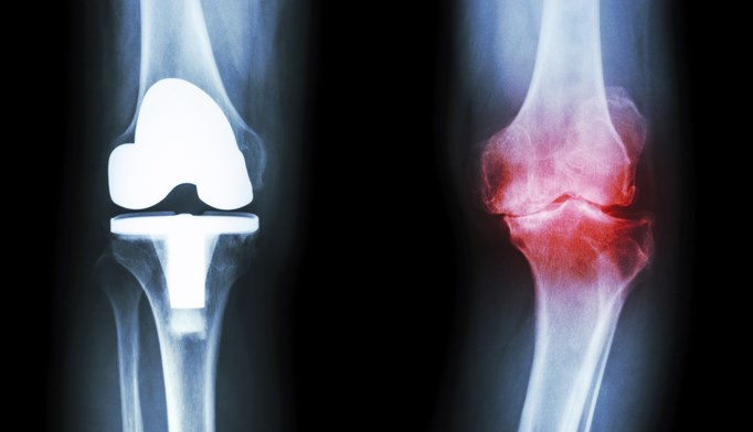 Patients who undergo total knee arthroplasty have better outcomes with bupivacaine liposome injectable than traditional anesthetics.